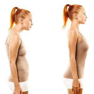 isw posture correction