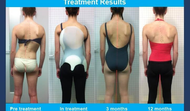 mild scoliosis treatment for adult